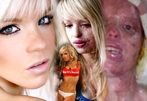 Katie Piper: vítima da excrescência humana