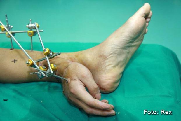 Mão decepada é salva depois de ser anexada ao tornozelo do dono