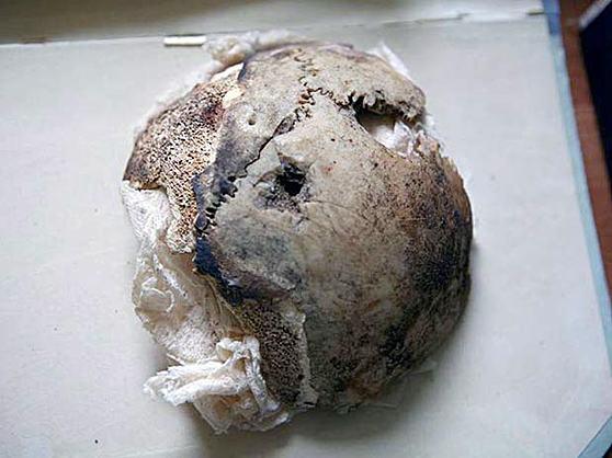 cranio-de-hitler-comprovado-ser-de-mulher