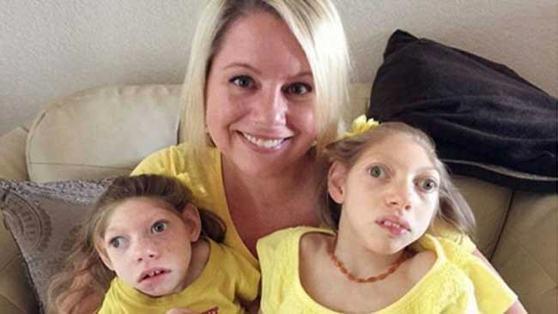 criancas-com-microcefalia