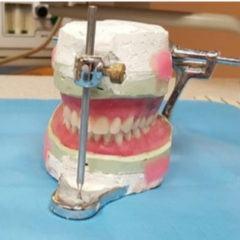 Cirurgia ortognática corrige deformidades na face
