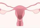 Como melhorar a qualidade de vida durante o período menstrual